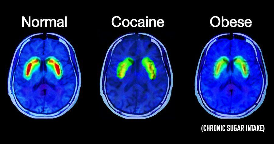 brain-on-sugar